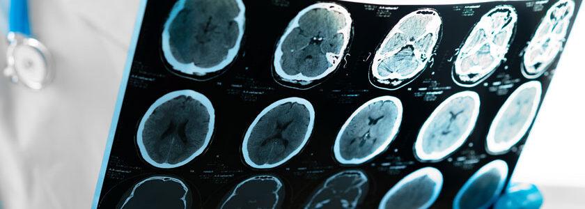neurochirurg-solutaris